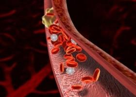 Склонность к образованию тромбозов